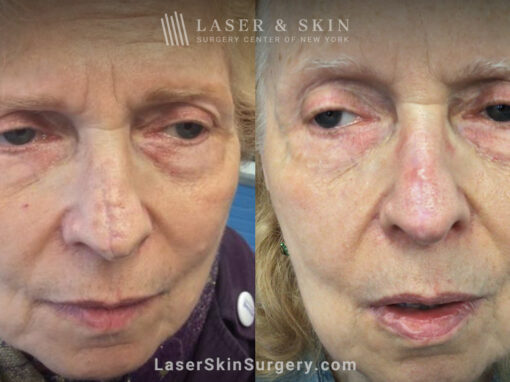CO2 Laser to Treat Nose Scar