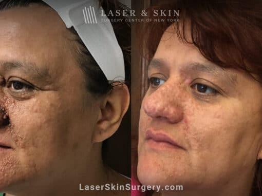Erbium Laser to Treat Tuberous Sclerosis and Angiofibromas