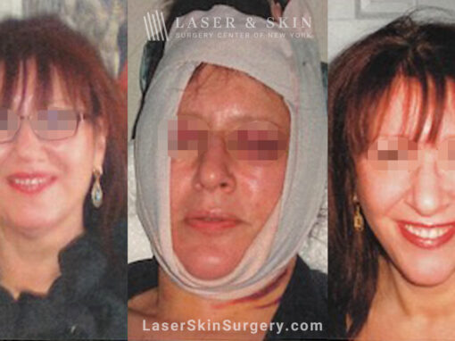 Facelift three days and three weeks after surgery