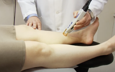 5 Reasons Laser & Skin Surgery Center of New York Should Be Your Go-To Place for Laser Hair Removal