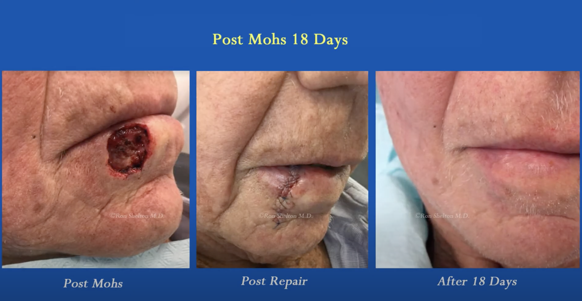 Mohs Micrographic Surgery for skin cancer treatment in Bronx nyc