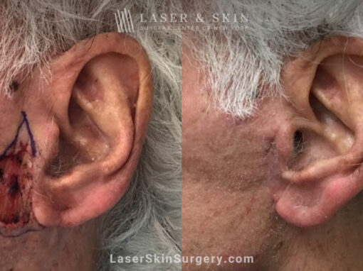 Mohs Surgery to Treat Skin Cancer on Ear
