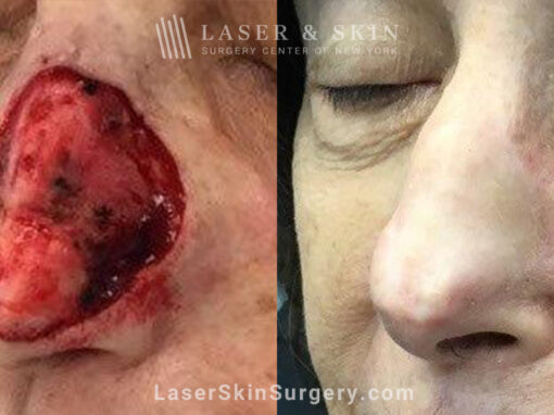 Mohs surgery to treat skin cancer on nose
