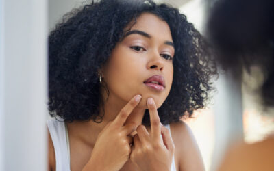 Dermatologists Say These 8 Methods Are Proven to Zap a Pimple Overnight, featuring Dr. Henry at Byrdie