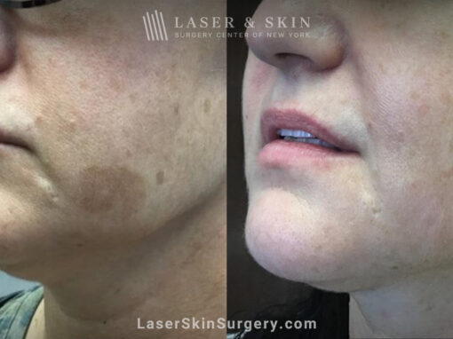 Ruby Laser to Treat Lentigo (Age Spot)
