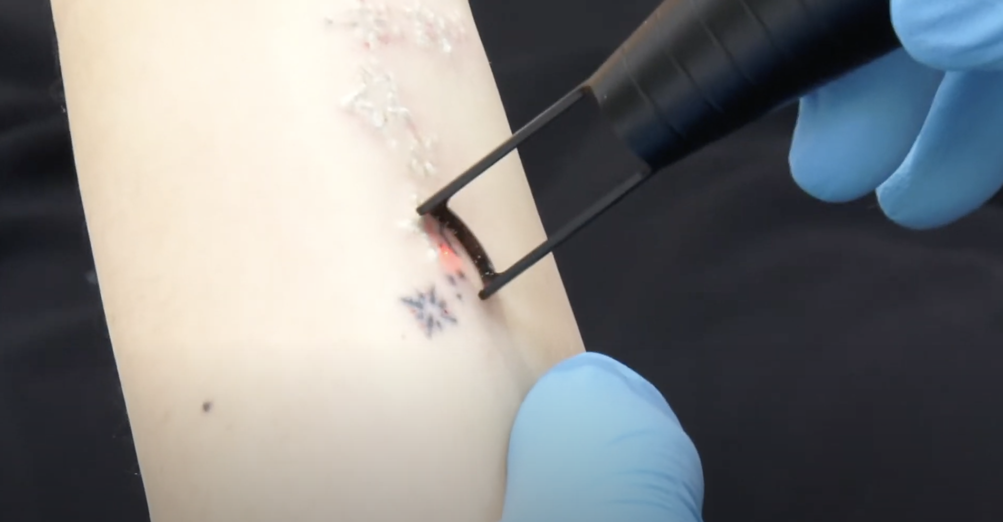 Laser skin care treatment and tattoo removal procedure in Southampton Ny.