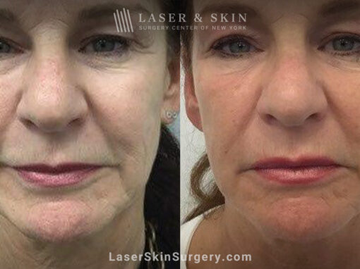 Ultherapy and Sofwave for skin tightening and wrinkle reduction