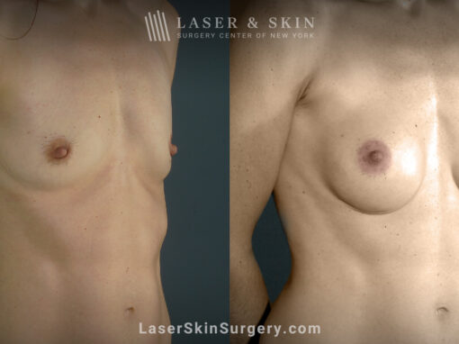 Breast augmentation to increase breast size