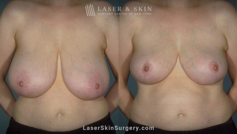 Breast reduction to create smaller breasts