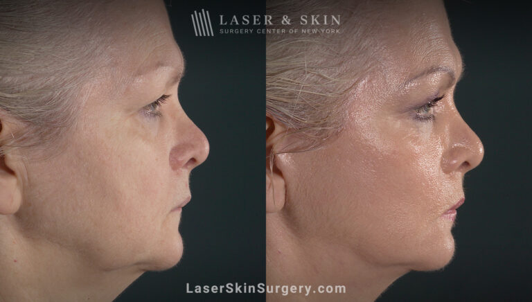 Facelift to rejuvenate the face and eliminate jowls