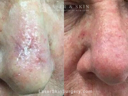 One Fraxel Dual treatment to reduce nose scar