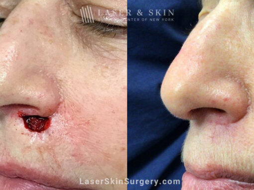 Mohs surgery to treat skin cancer near nose