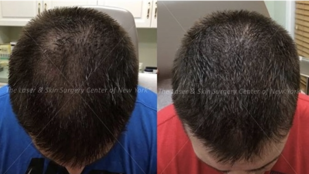 using PRP to stimulate hair growth in NY, NY