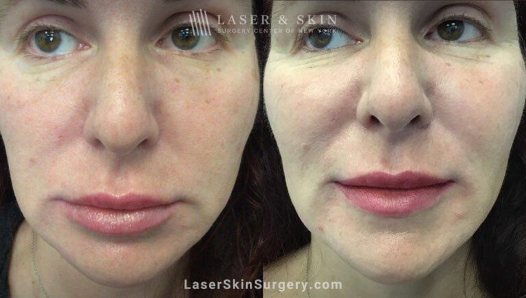 RHA filler to treat cheeks, smile lines, and corners of mouth