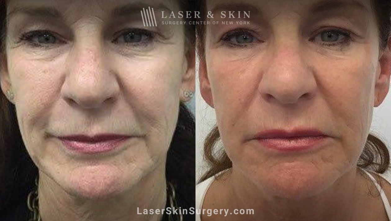 sofwave wrinkle treatment in NY, NY