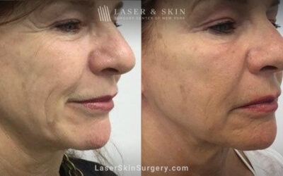 New Dermatological Treatments Are Changing How We Treat Patients