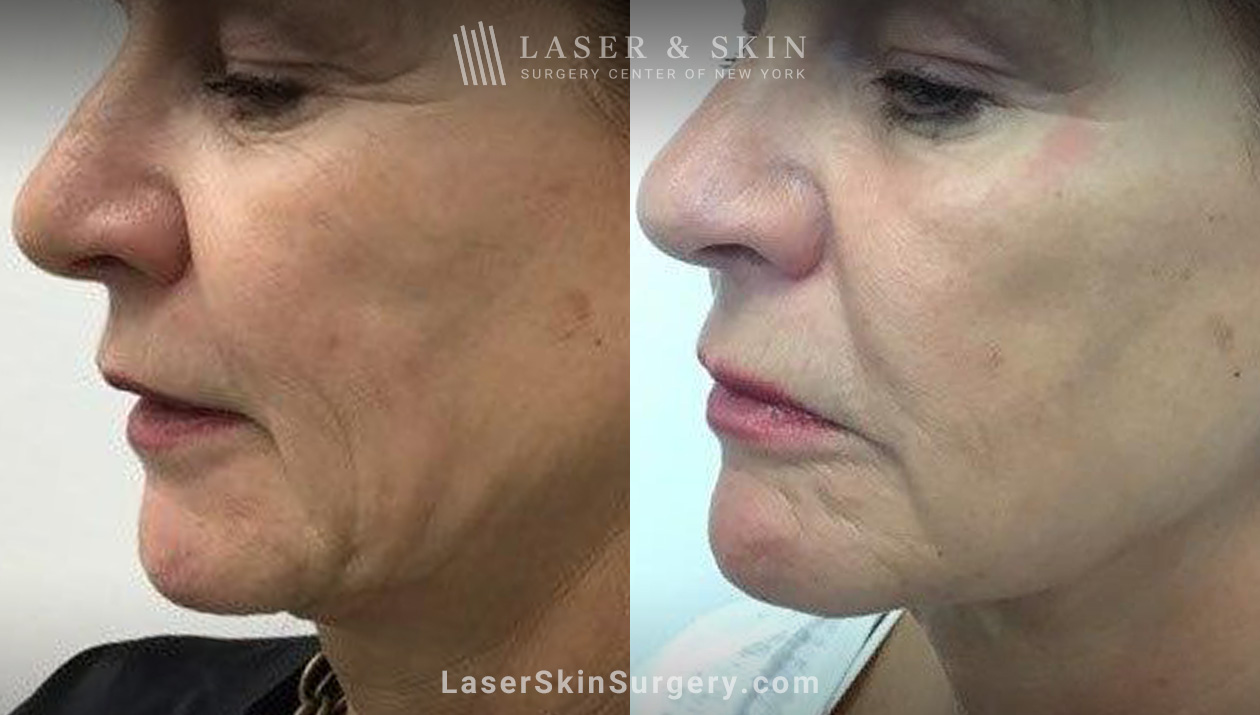 sofwave skin treatment in NYC, NY