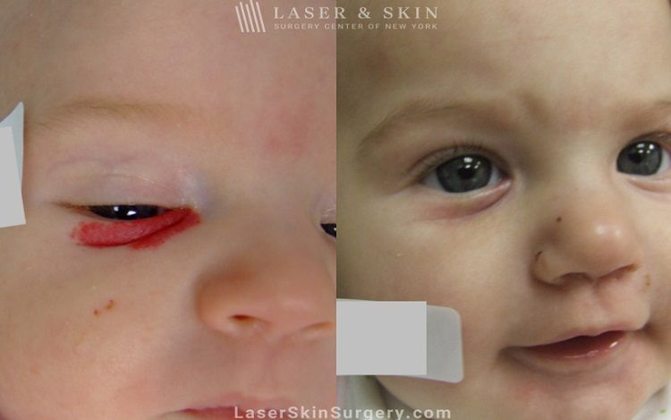 child hemangioma treatment NYC