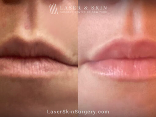 Lip filler to add fullness to the lips