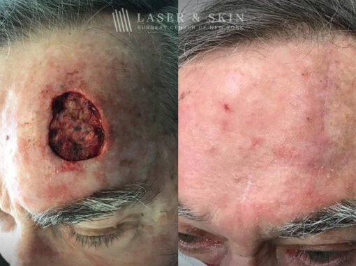 Mohs Surgery to Treat Skin Cancer on Forehead