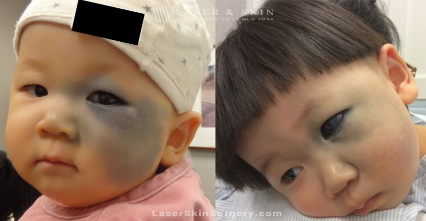 child nevus of ota treatment in NY