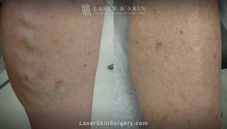 Sclerotherapy to treat leg veins