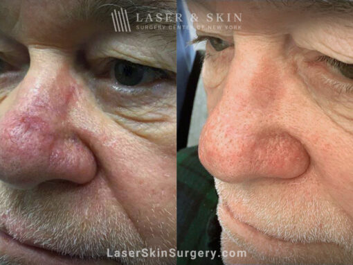 Vbeam to treat nose scar and redness