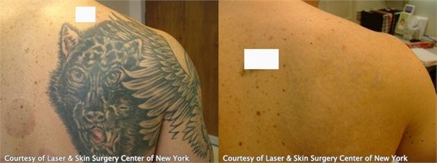 laser tattoo removal results in NY,NY