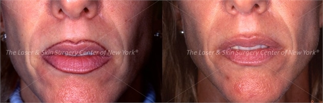 laser tattoo removal for permanent makeup in NY,NY