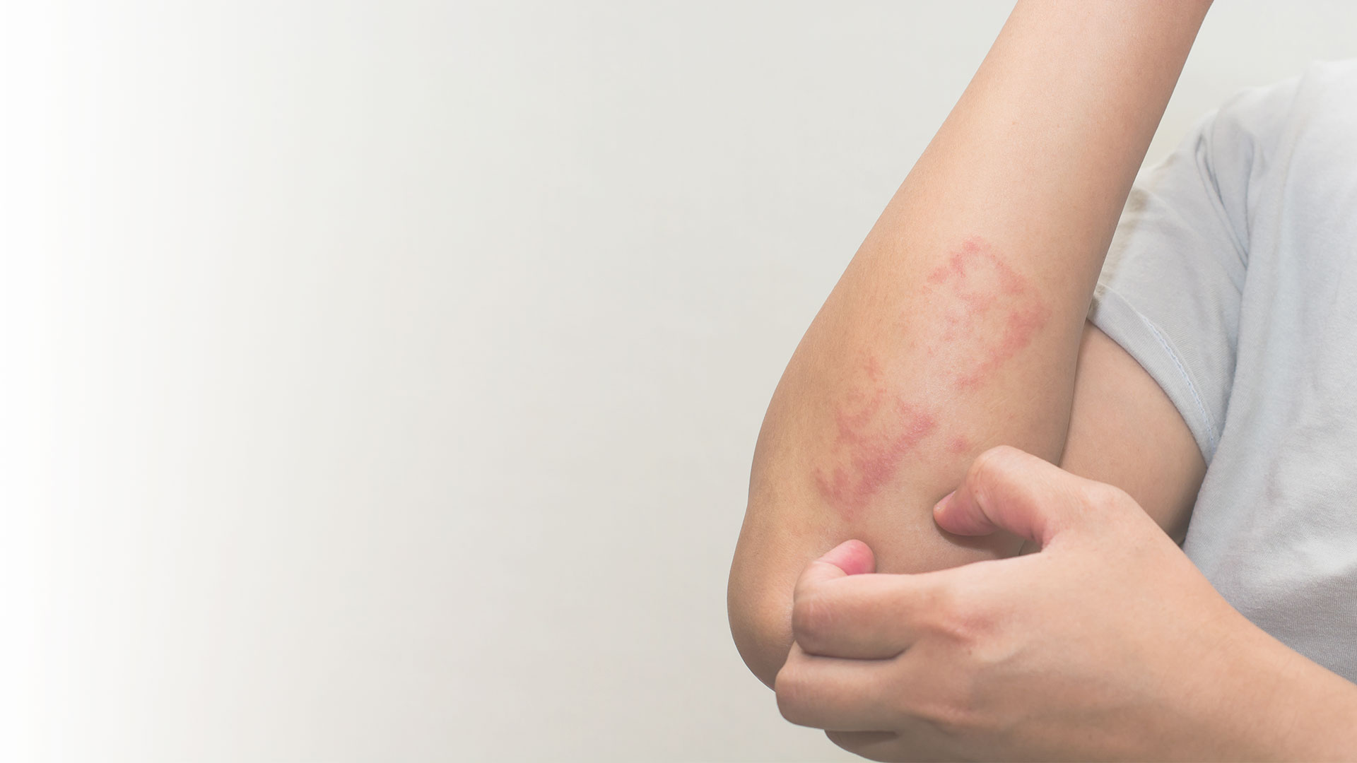 pediatric rashes treatment, NY, NY