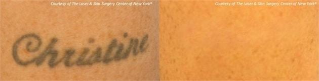laser tattoo removal in NY,NY
