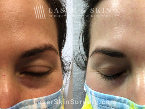 Laser treatment to remove red spots from patient's face