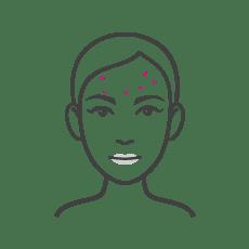 Acne Scars in Darker Skin Types
