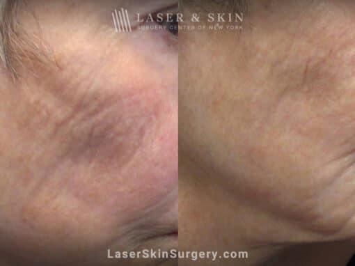 AquaGold microneedling for skin rejuvenation