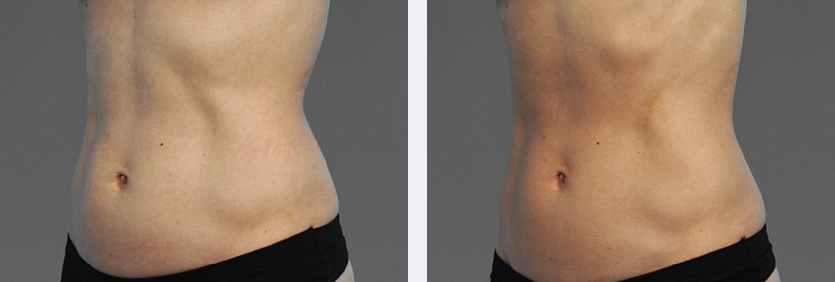 Image showing results from CoolTone treatment, a new body sculpting technology, New York City NY