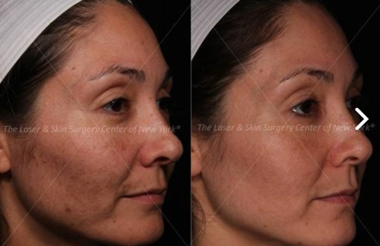 Face shot of a female patient showing her face with melasma and the results after treatment, New York City, NY