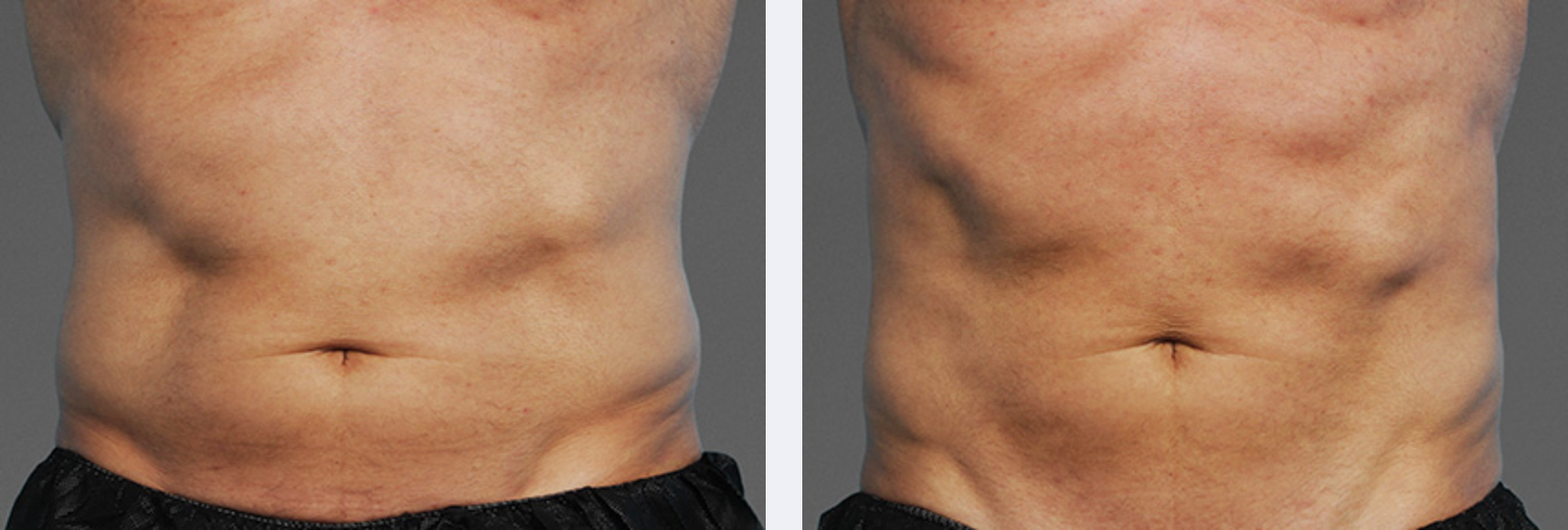 Image showing abs that look more in shape after a cooltone workout for body contouring, New York City, NY