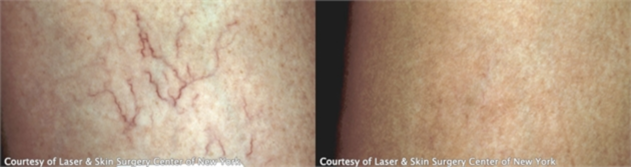 Image of leg with varicose veins and the results after the treatment, New York, NY