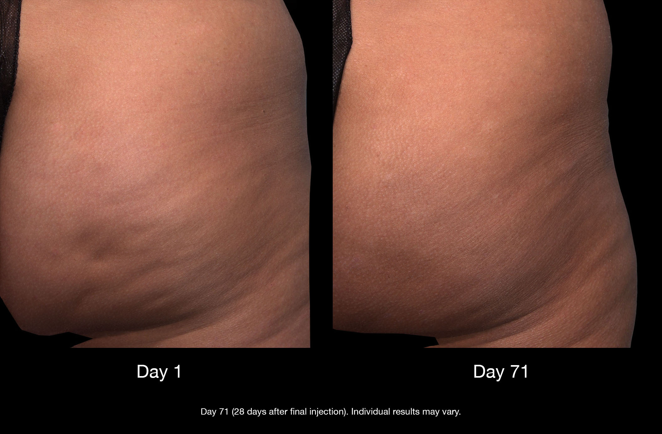 Image showing results after QWO injections for treating cellulite, New York City, NY