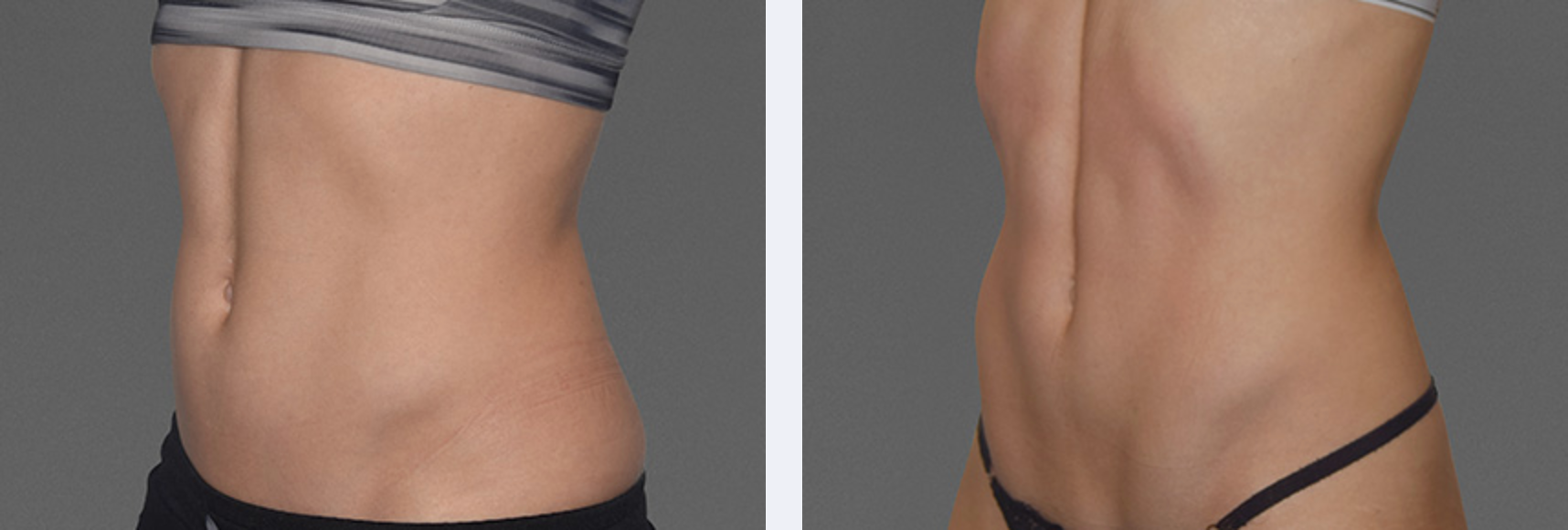 Image of a toned waist after it used new body sculpting technology, CoolTone, New York City, NY