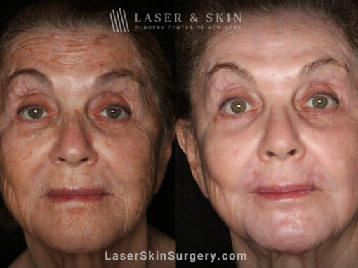 Sciton Erbium Contour Laser Treatment for Skin Rejuvenation