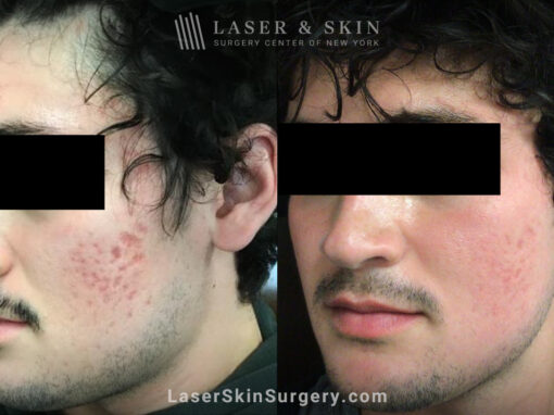 Fraxel and Vbeam used to treat acne scarring