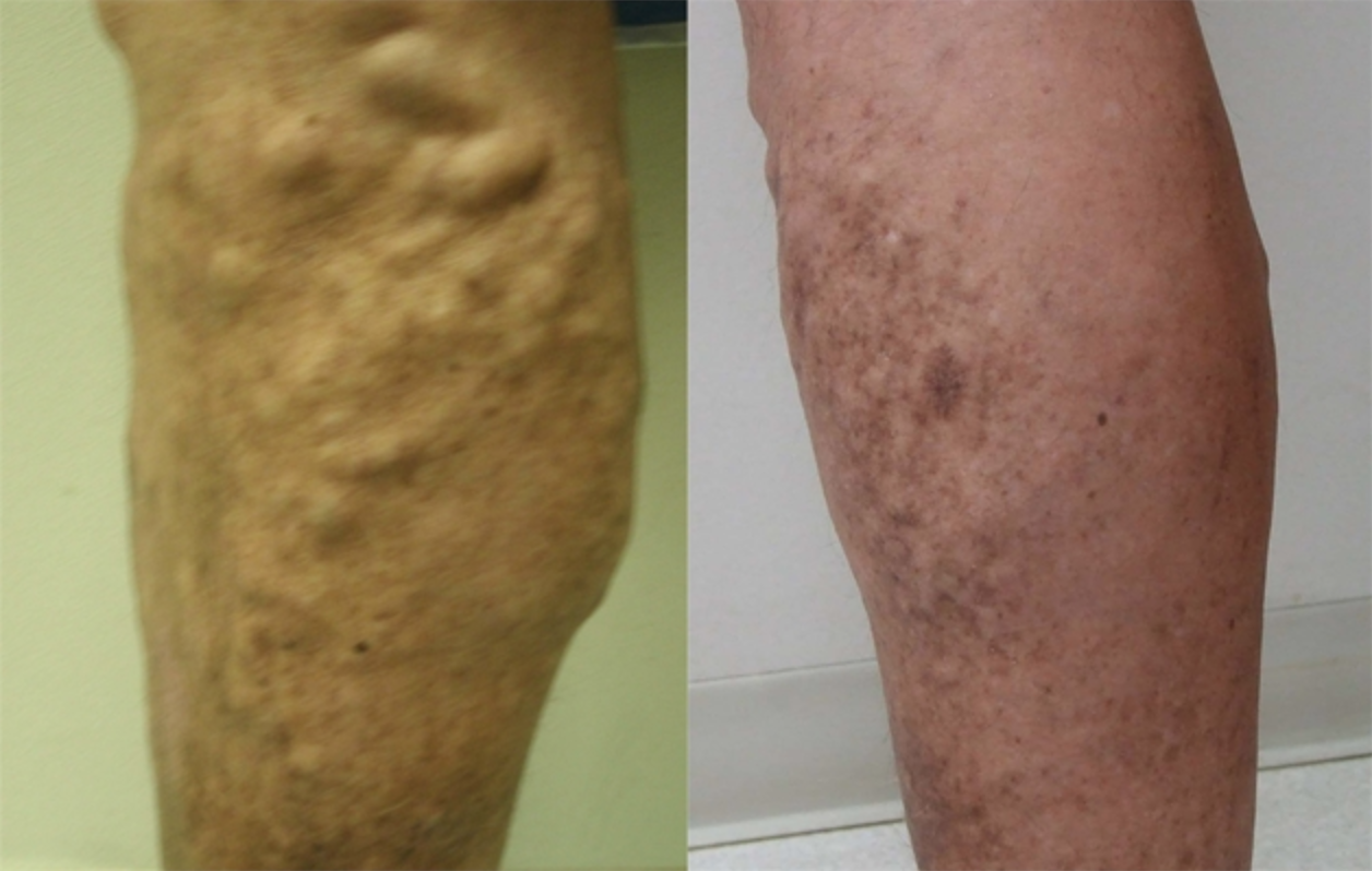 Image of a leg with Leg veins and after the treatment, New York, NY