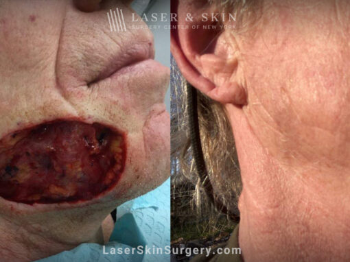 Mohs Surgery for Skin Cancer – 13 months later