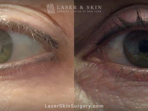 PicoPlus laser to remove permanent eyeliner