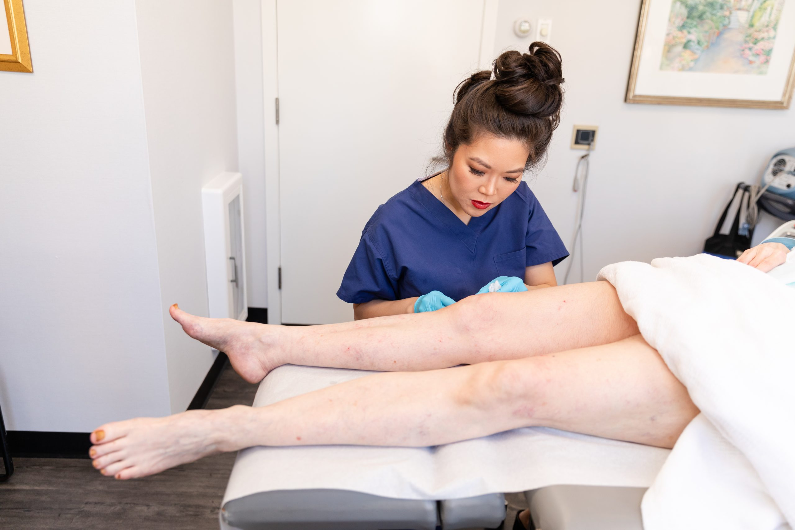 Doctor examining spider veins on the legs of a female patient, New York City, NY