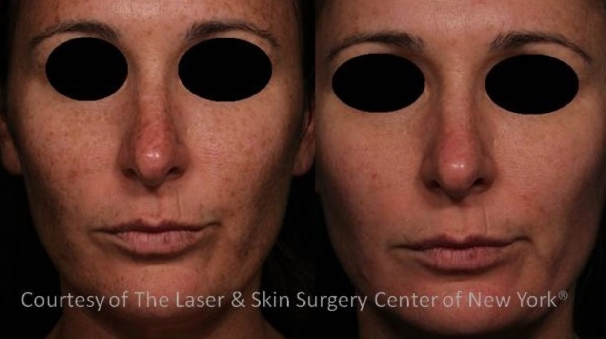Image showing melasma spots removed from the face of a female patient after the treatment, New York City, NY