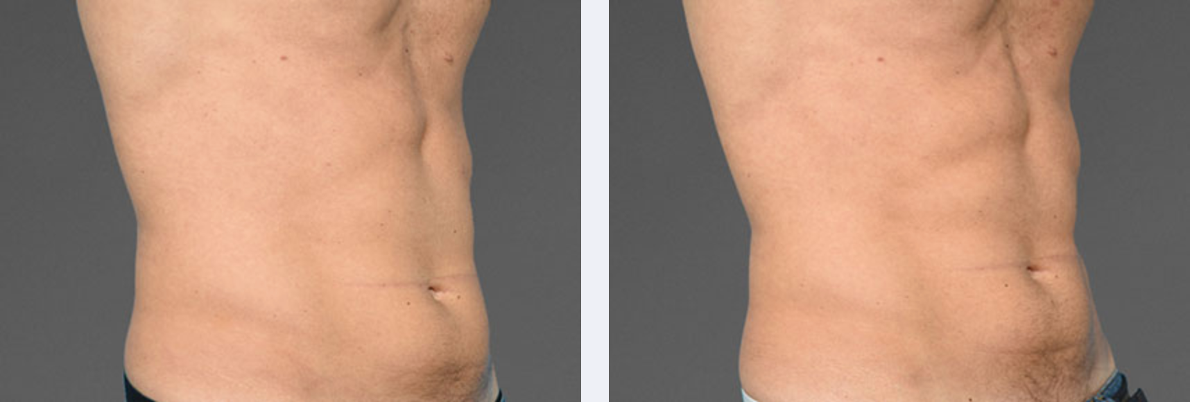 Image showing toned abdomen area after 4-6 weeks using cooltone for body toning, New York City, NY