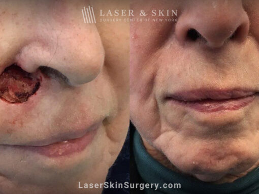 Mohs Surgery to Treat Skin Cancer near the Nose
