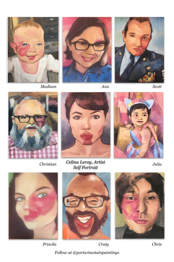 A portrait showing people of various ages and gender with port wine stain, NYC, NY